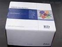 猪组胺(HIS)检测试剂盒